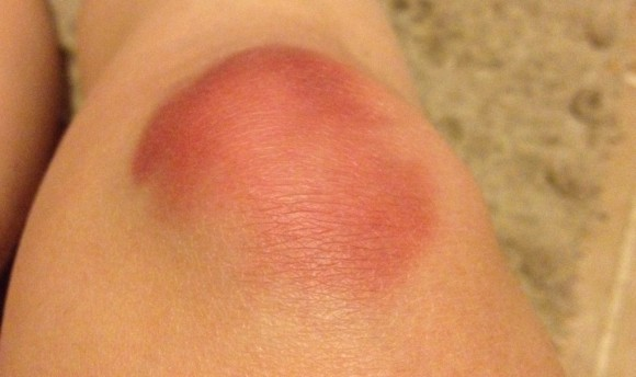 bruised knees from doing burpees at Crossfit